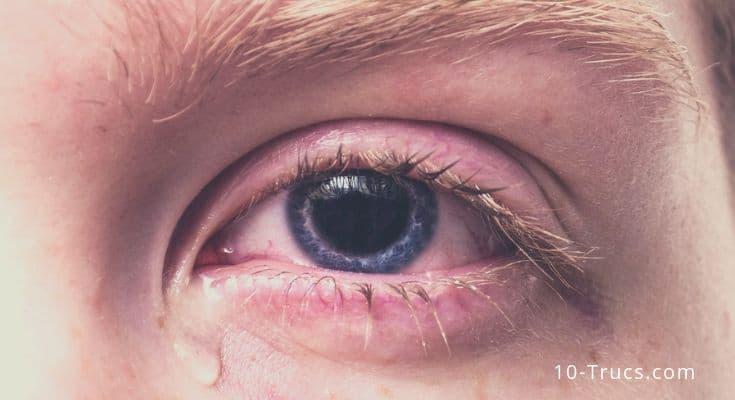 yeux qui coulent, yeux qui pique,
