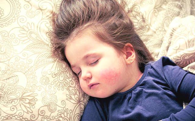 soulager la varicelle