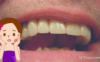 Comment soulager et calmer les dents de sagesse