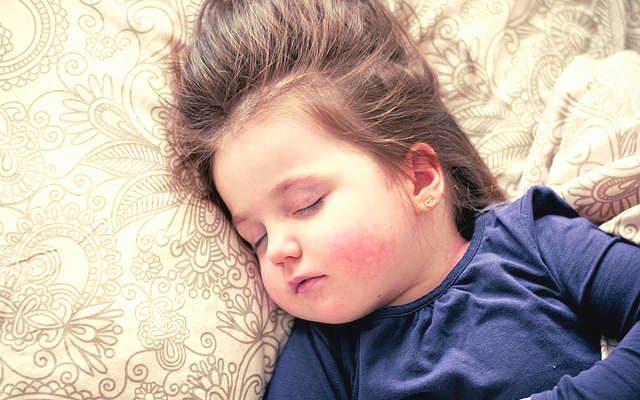 comment soulager et soigner la varicelle