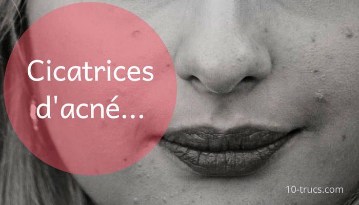 cicatrice d'Acné, des solutions naturelles comme traitement