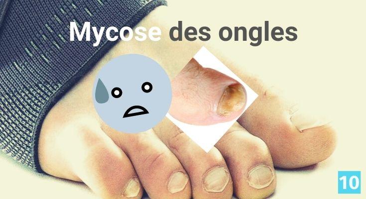 Traitement naturel pour une mycose des ongles